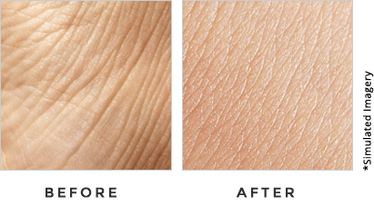 Triple Collagen Before And After